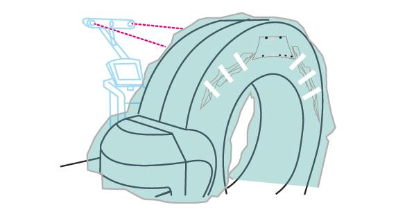 ILUMARK Sterile Abdeckung für O-Arm